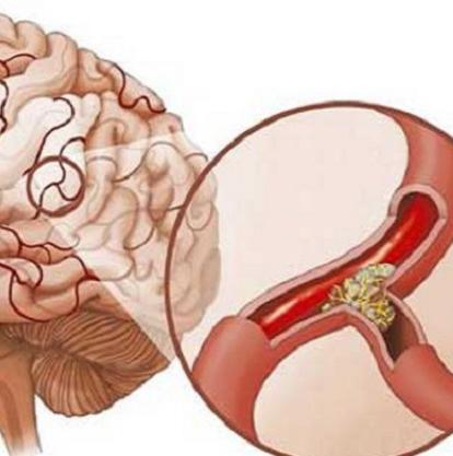 Sau tai biến mạch máu não
