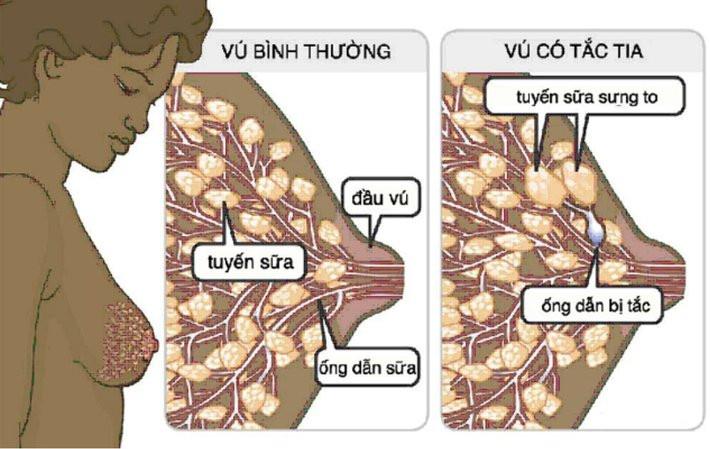 Điều trị tắc tia sữa bằng YHCT hiệu quả