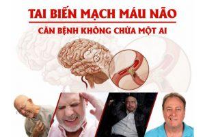 Các di chứng sau tai biến mạch máu não