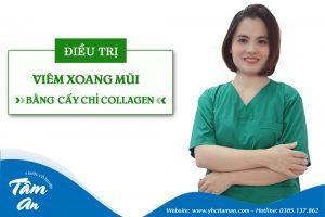 Thạc sĩ Bác sĩ Trần Phương Thủy – Bàn tay vàng cấy chỉ chữa viêm xoang mũi