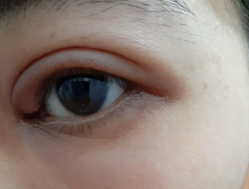 điều trị chắp lẹo mắt