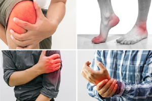 Những bệnh xương khớp thường gặp trong mùa đông