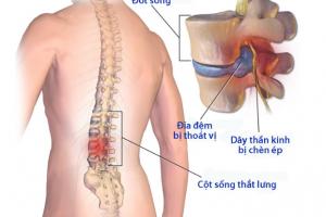 Triệu chứng báo động bệnh thoát vị đĩa đệm