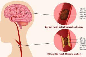 Những di chứng sau tai biến mạch máu não và cách điều trị hiệu quả